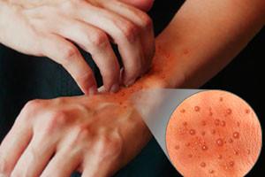 Синафлан отзывы от аллергии, псориаза