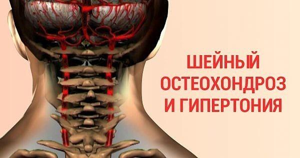 Гипертония и шейный остеохондроз