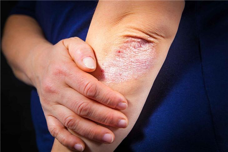 Ученые из Уфы нашли связь между белками кожи человека и псориазом