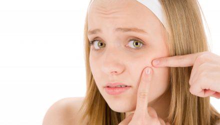 Как избавиться от прыщей на лице: лечение, симптомы, стадии и причины (по Малышевой)